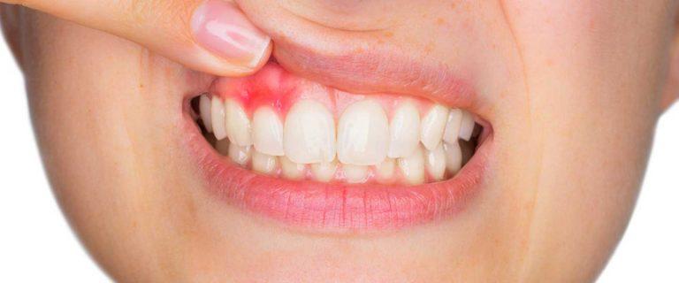 Diş Eti Estetiği Nedir