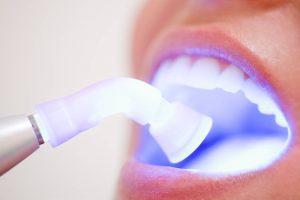 Lazer ile Diş Eti Tedavisi
